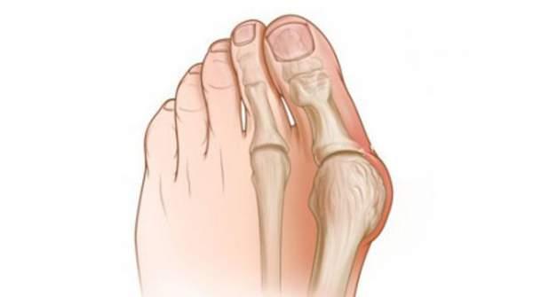Причины появления косточки на большом пальце
