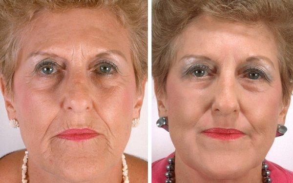 золотые нити для лица фото до и после процедуры