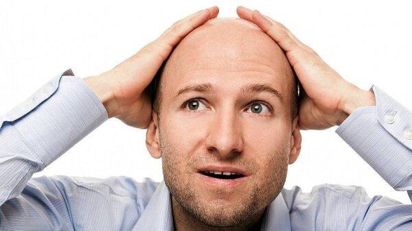 облысение у мужчин причины и лечение
