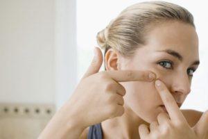 причины появления прыщей на лице